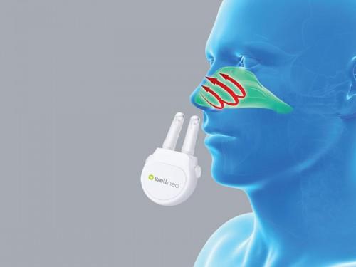 Allergia elleni készülék Wellneo